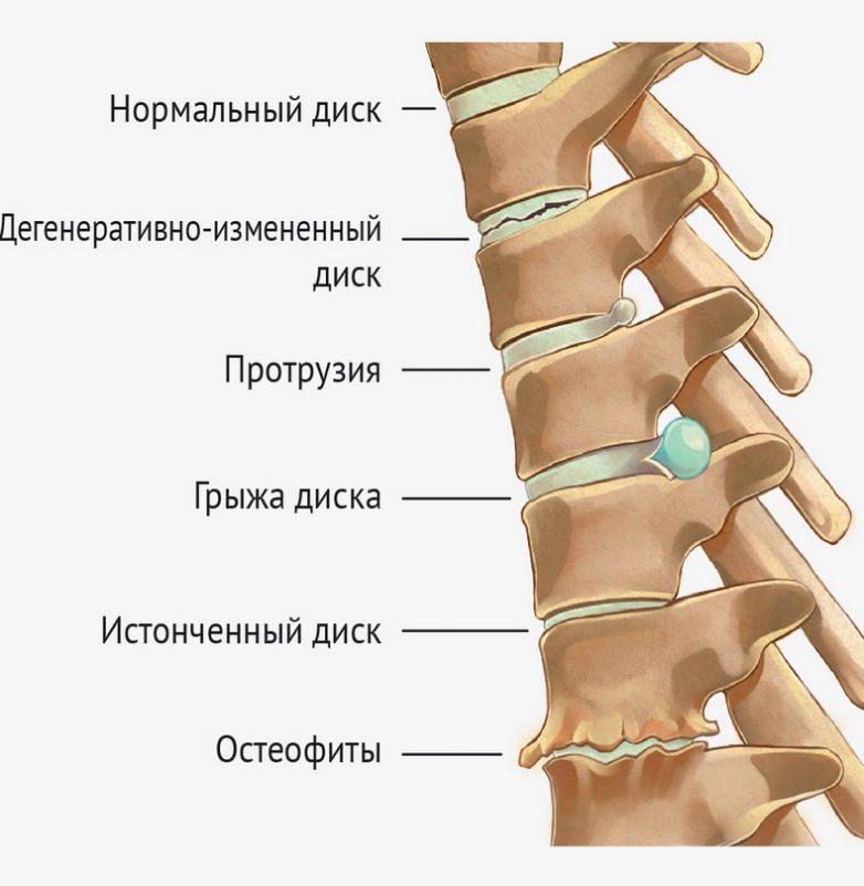 Упражнения, которые запрещены при грыже межпозвонкового диска