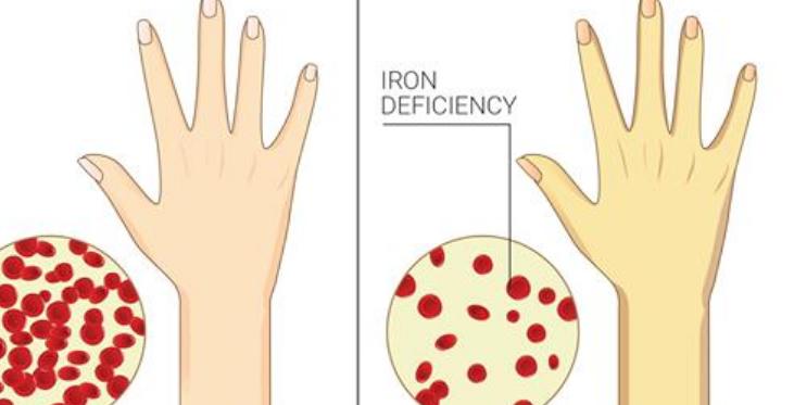 Признаки хронического дефицита железа в организме