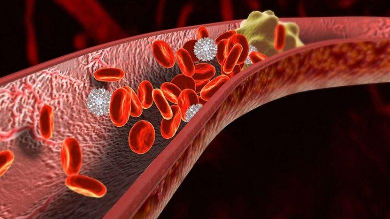 Первые признаки появления смертоносных тромбов