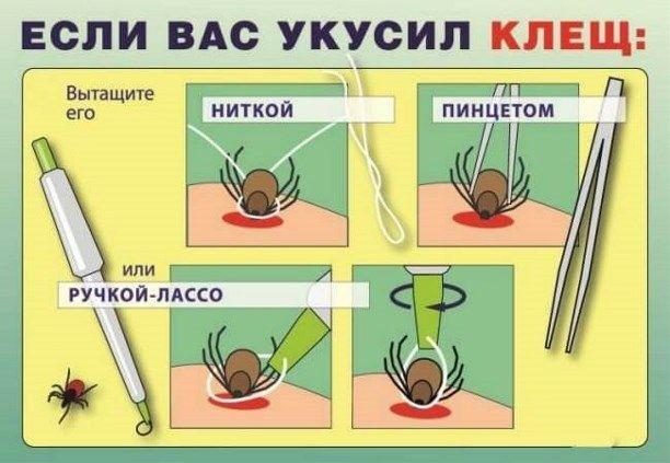 Клещ не пройдет: как летом уберечь себя от опасных насекомых