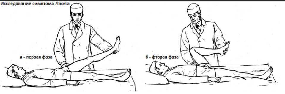 Если ноги стали слабыми — ищите причину в позвоночнике!