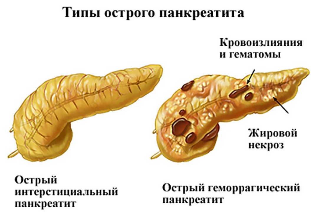 Как остановить панкреатит!
