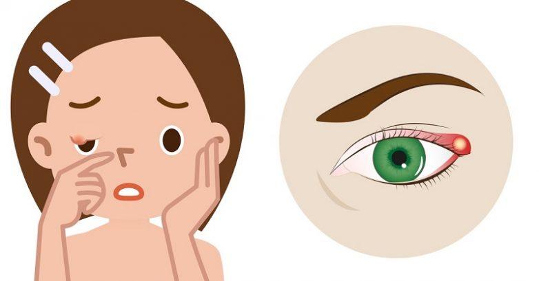 8 безопасных и эффективных способов избавиться от ячменя на глазу