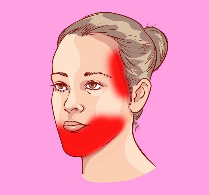 Виды головной боли, за которыми скрываются проблемы со здоровьем