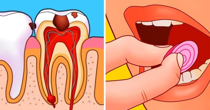 Домашние средства, снимающие зубную боль