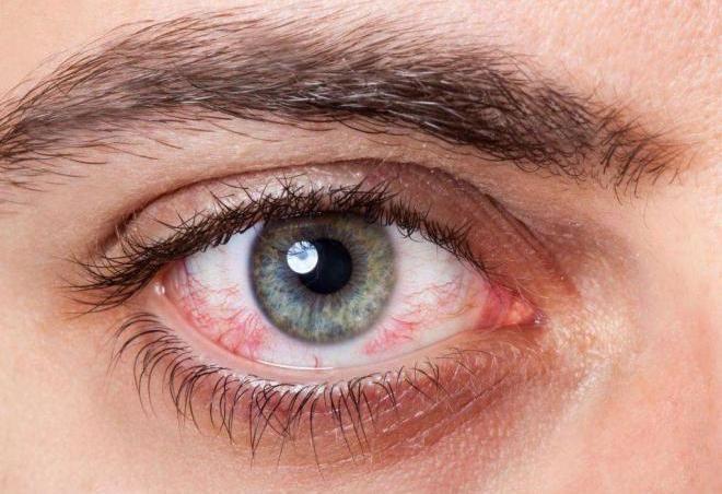 9 мифов о контактных линзах, которые требуют разъяснений