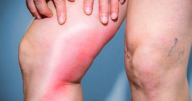 Опасные признаки тромба в организме, который может вас мгновенно убить