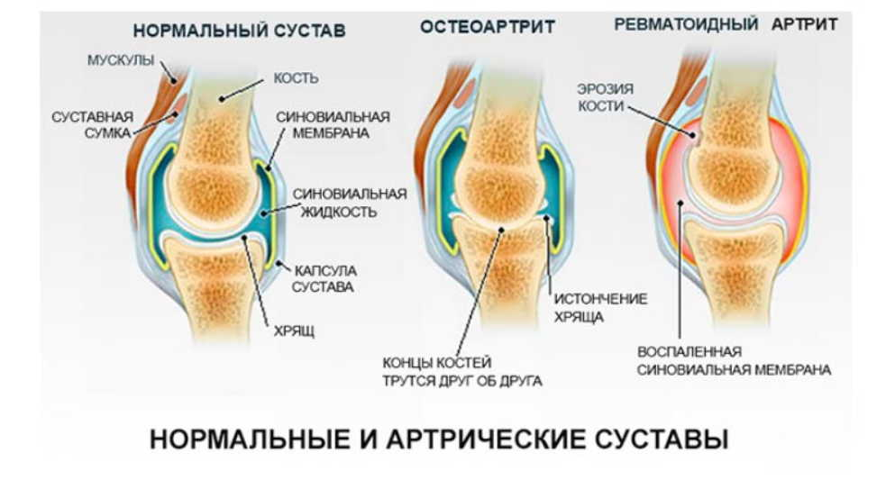 Раньше при малейшем переохлаждении нестерпимо болели колени, зато уже несколько лет забыла о боли!