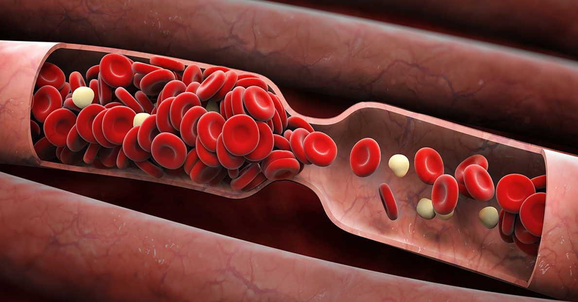 Разжижение крови–это наиглавнейший путь к долголетию!