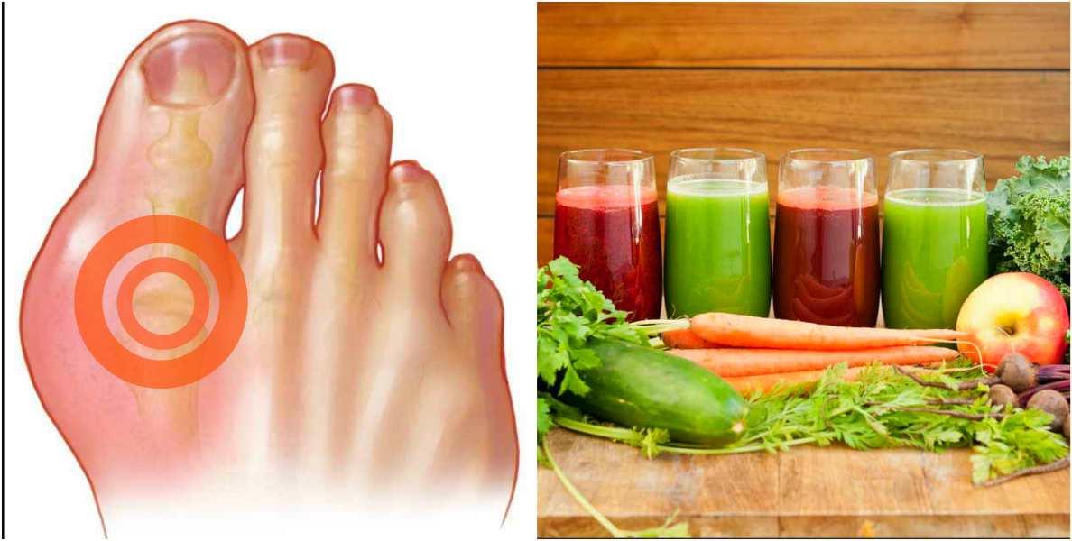 Лечение подагры и отложения солей соками: 15 рецептов