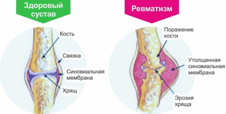 Ревматизм медом лечила — быстро болезнь победила. Рецепты простые, но золотые — боли нет!