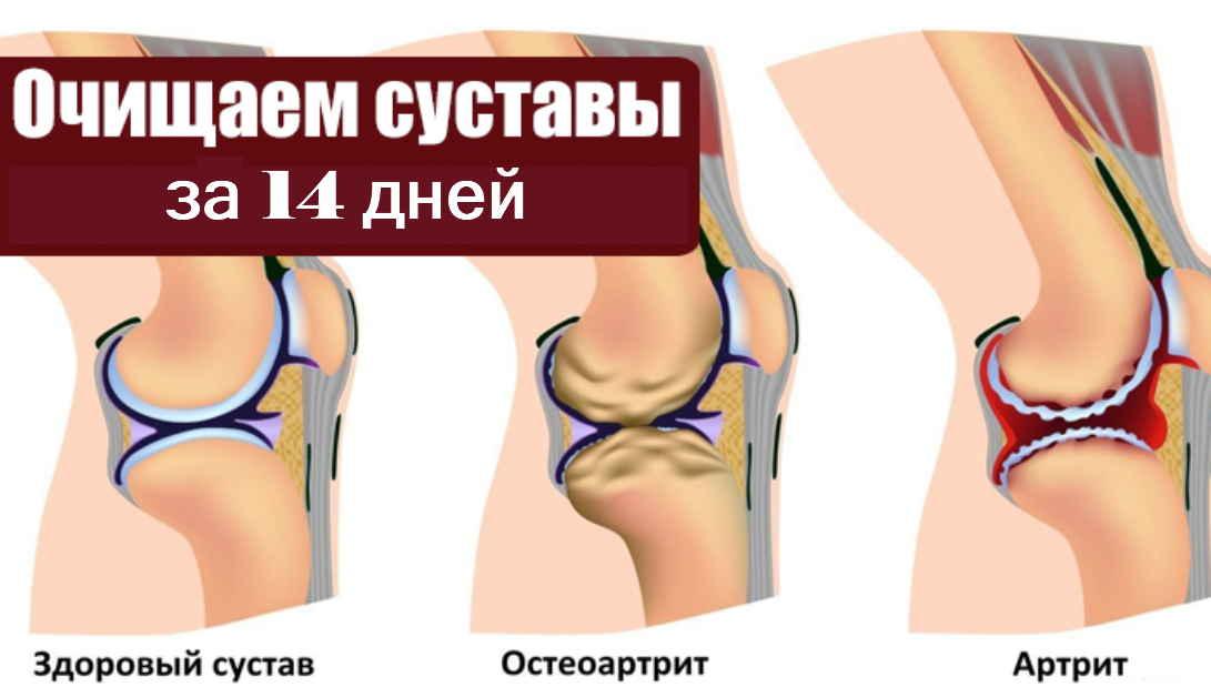 14-дневная чистка суставов — делайте весной и забудете о ревматизме и жутких болях