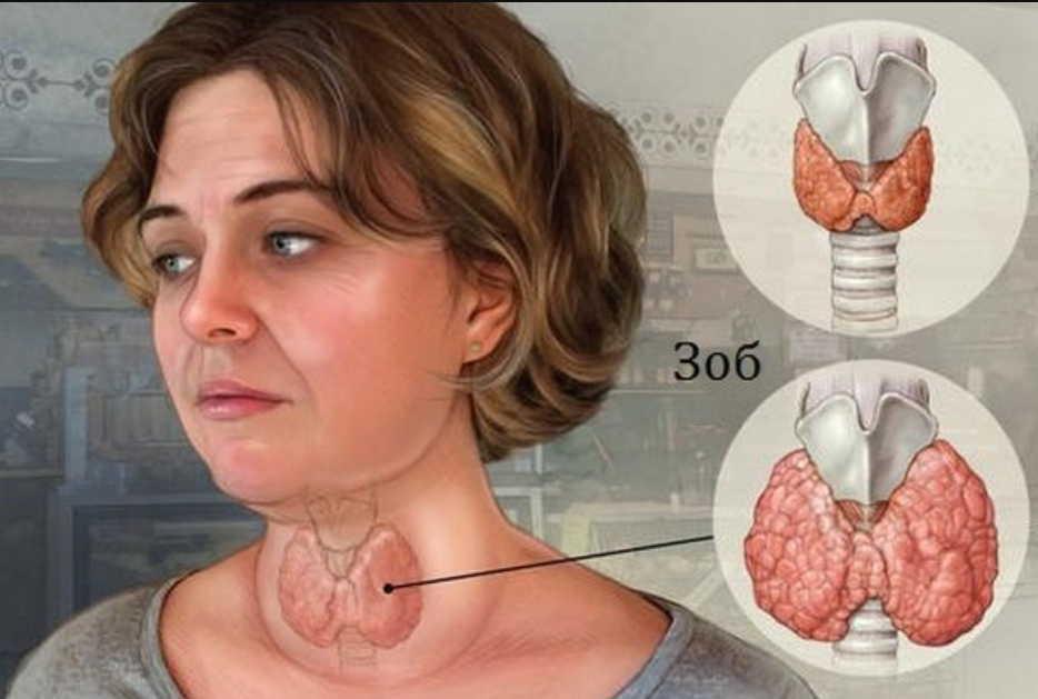 Узловой токсический зоб — накопала корни одуванчика ранней весной и избежала удаления щитовидки
