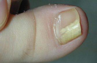 Эффективное 2-компонентное средство от грибка ногтей