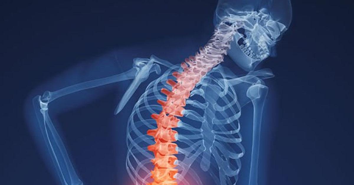 Остеопороз: симптомы, причины и лучшие способы укрепления костей
