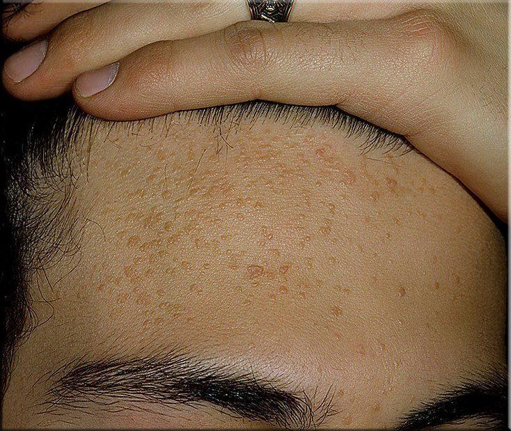 Плоские бородавки: причины, лечение