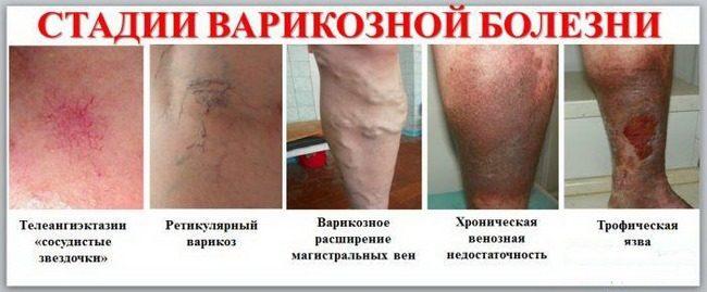 Варикоз: причины, симптомы, лечение
