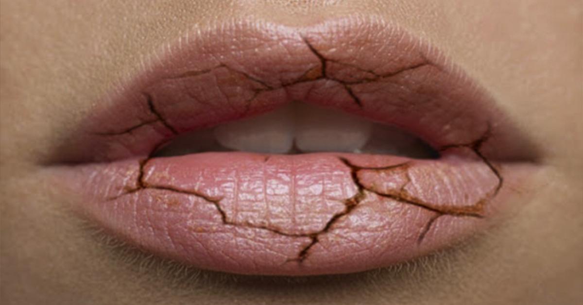 Рекомендации, чтобы покончить с сухостью и трещинками на губах