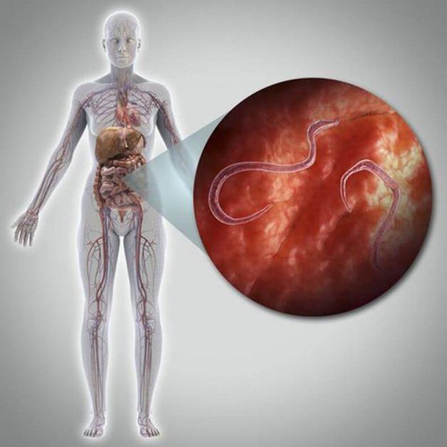 Паразиты в организме: Признаки заражения и способы избавления