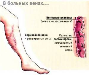 Народные рецепты для лечения и профилактики варикоза