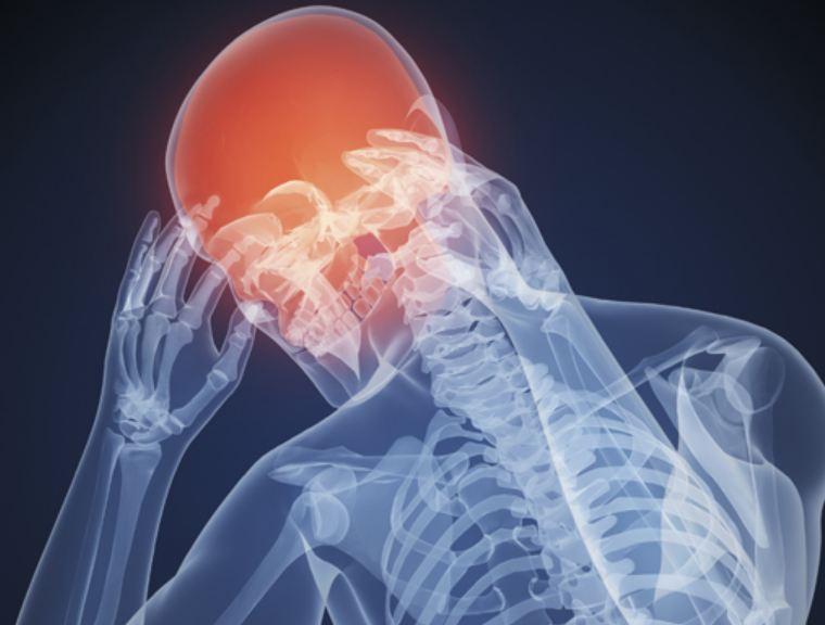 5 предупредительных сигналов: О чем говорит боль в разных частях головы?