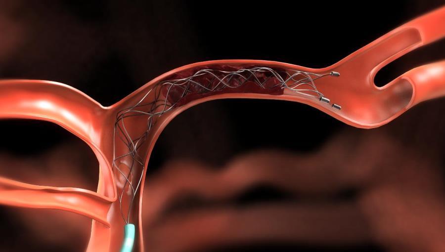 Признаки тромба — 6 проблем со здоровьем